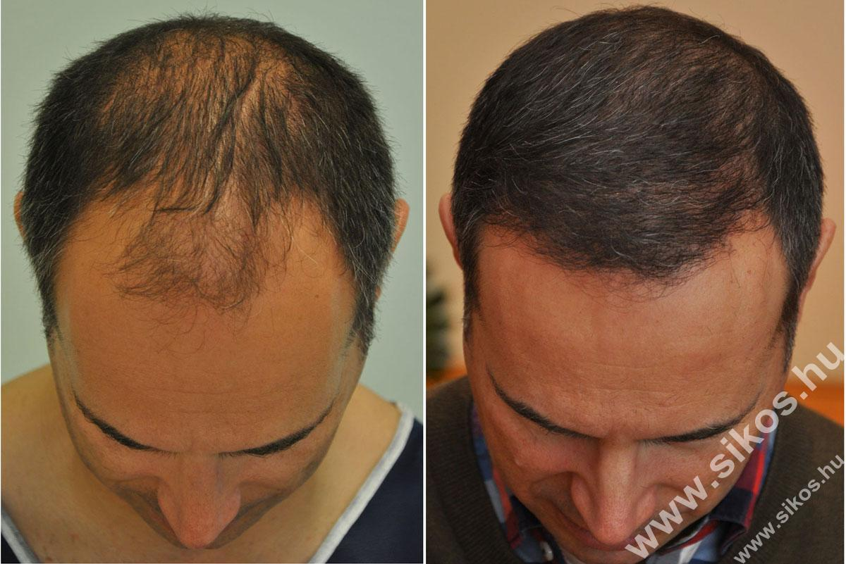 Hair Transplant Expert In Budapest Hungary Dr Sikos